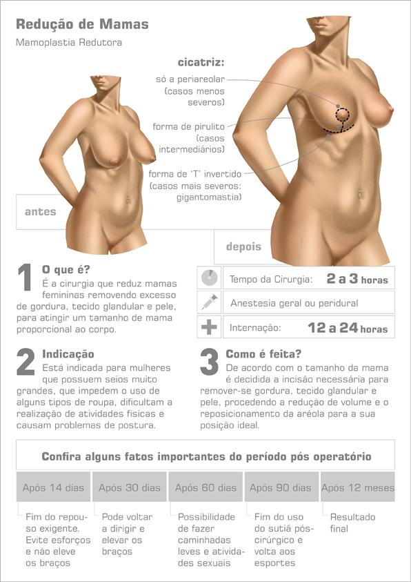 Reducao de mama tamanho ideal
